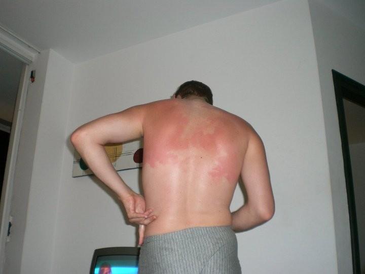 Sunburn in Lloret de Mar